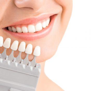 Bleaching Zahnarzt Köln