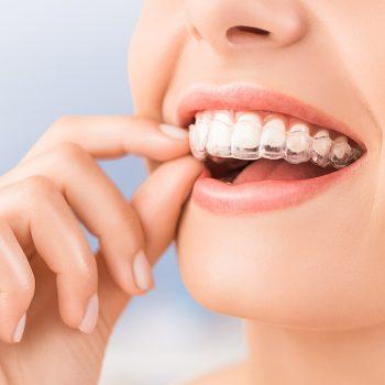 Invisalign - die unsichtbare Zahnspange Zahnarzt Köln