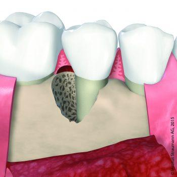 Parodontitis Behandlung Zahnarzt Köln