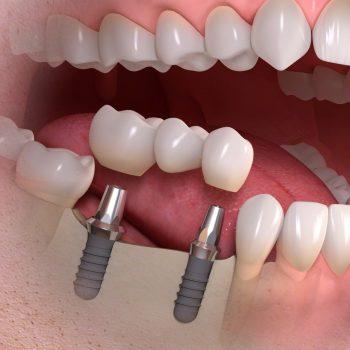 Zahn Implantat Zahnarzt Köln