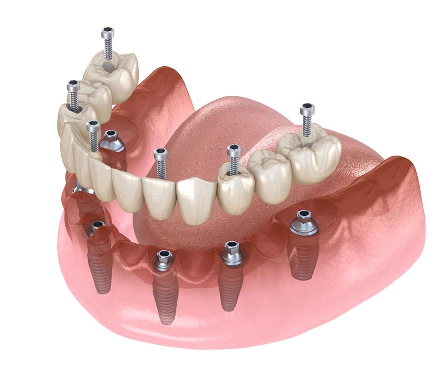 Totalprothese Haftung auf 6 Implantaten