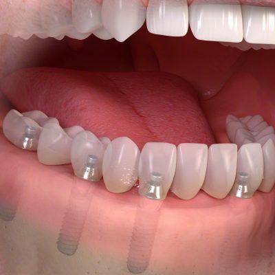 Zahnersatz auf Implantate