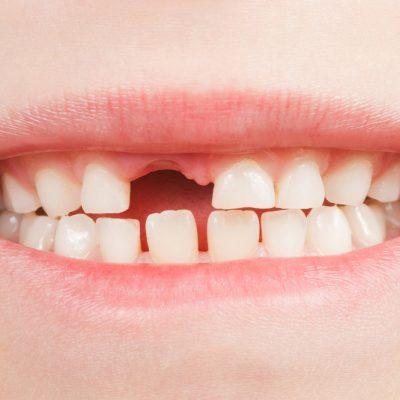 Kinderbehandlung Zahnarzt Köln