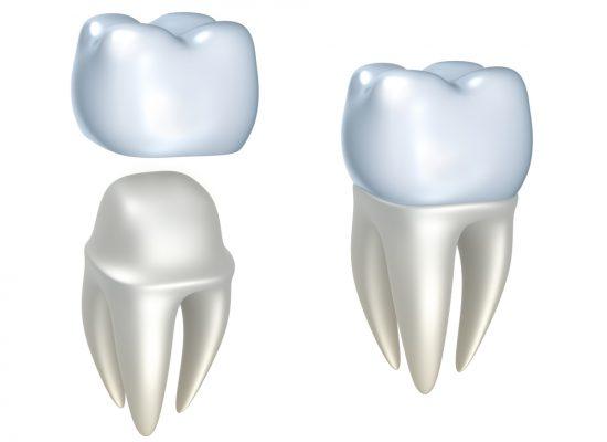 Zahnersatz Zahnkrone